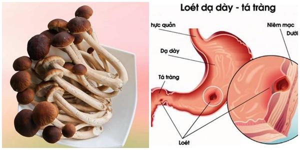 Nấm cây trà có công dụng tuyệt vời trong chữa viêm gan và loét dạ dày.