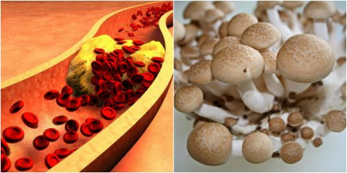 Công dụng nấm ngọc bích làm giảm cholesterol trong máu