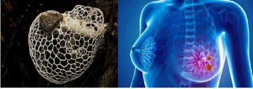 Nấm tâm trúc ngăn ngừa và hỗ trợ điều trị bệnh ung thư vú